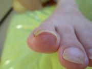 巻き爪 女性
