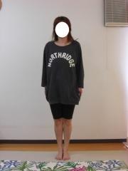 産後のO脚,骨盤矯正 38歳 女性 3ヶ月後