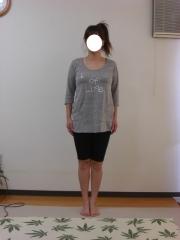 産後のO脚,骨盤矯正 38歳 女性 1ヶ月後