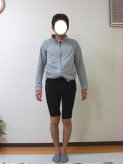 O脚矯正 30代 男性 before