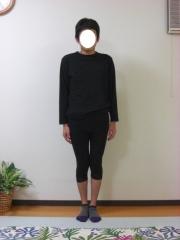 O脚矯正 30代 男性 after