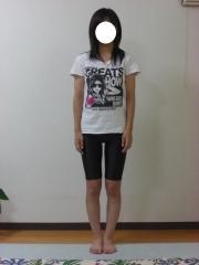 O脚矯正 15歳 女性 before