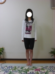O脚矯正 15歳 女性 after