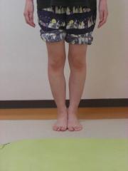 O脚矯正 女性 after 4ヵ月後