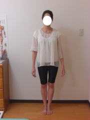 産後のO脚 骨盤矯正 23歳 主婦 1ヶ月後