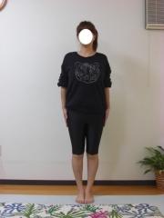 産後のO脚,骨盤矯正 38歳 女性 before
